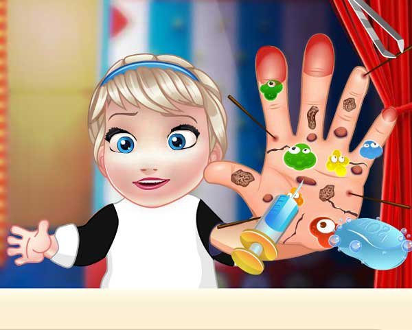 baby elsa hand doctor0